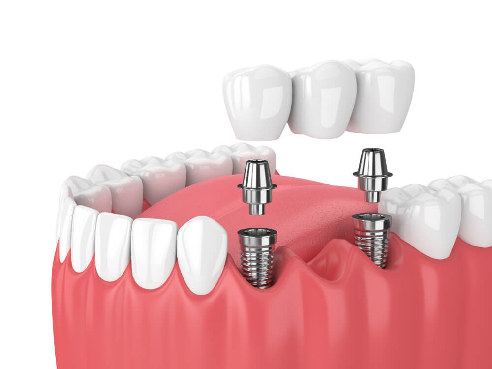 Dental Bridges (Medium)